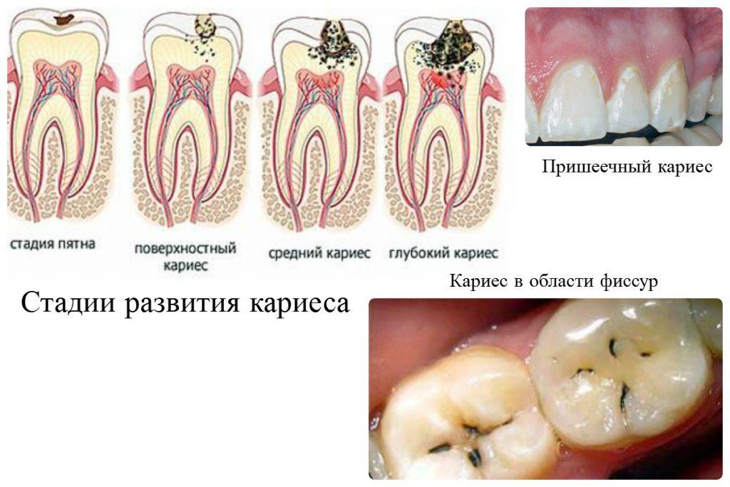 Пульпит: диагностика, классификация, формы заболевания