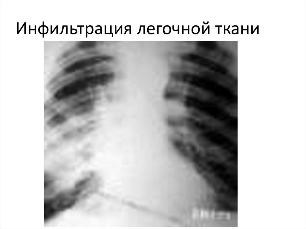 Инфильтрация легких: что это такое, при каких заболеваниях встречается