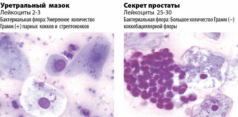 Ключевые клетки в мазке: почему появляются и как лечить.
