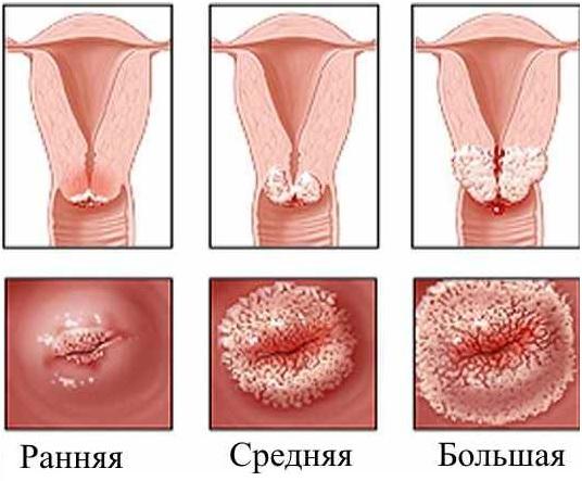 Хирургическая дефлорация