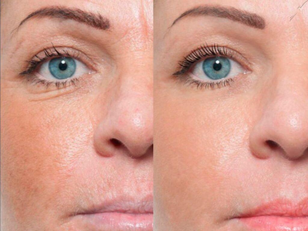 Биоревитализация * фото до и после, эффект от процедуры лица, шеи, рук