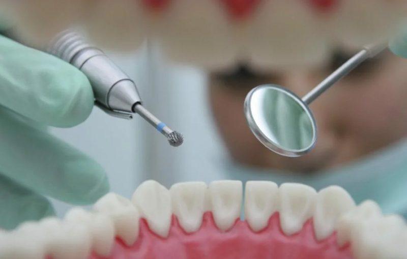 Пломба (стоматология)