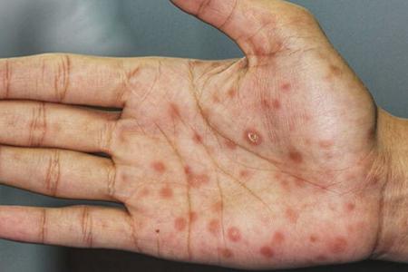 Бытовой сифилис: как передается и что это такое
