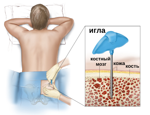 Костный мозг – где находится? желтый и красный костный мозг – функции. донорство, пересадка костного мозга