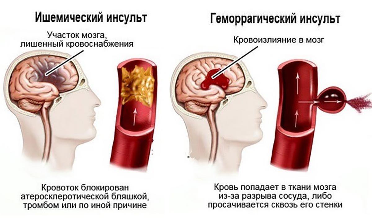 Последствия ишемического инсульта левой или правой стороны головного мозга, осложнения