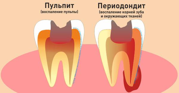 Пульпа зуба: что это такое и как лечить воспаление