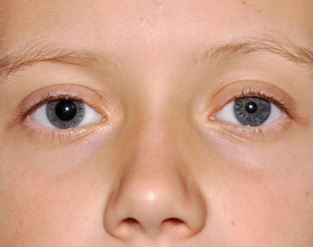 Анизокория: причины, при каких заболеваниях бывает и что это такое, симптомы, лечение у взрослого и ребенка, диагностика, профилактика, фото