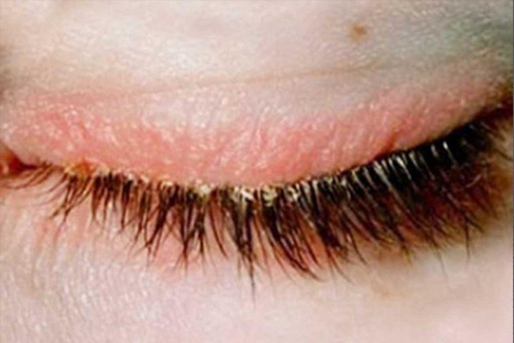 Подкожный клещ на лице: симптомы и лечение, народные средства