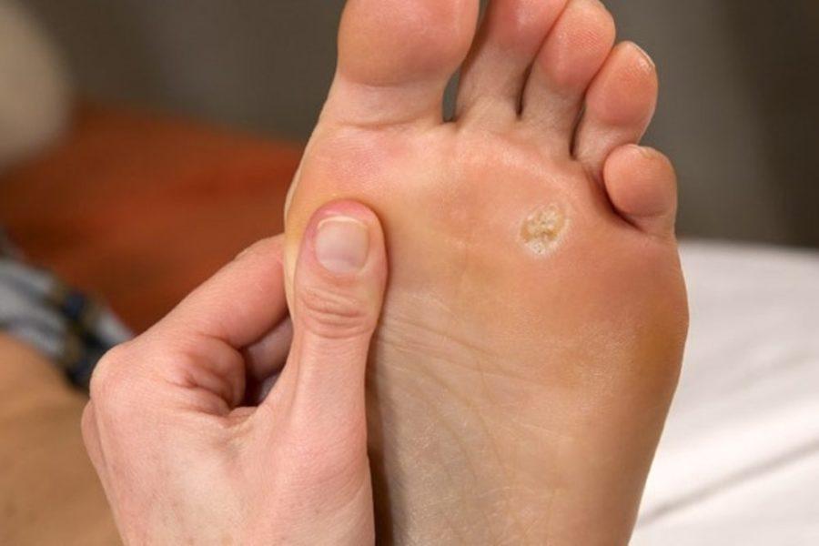 Шипига на пятке или пальцах ног: причины появления и методы лечения