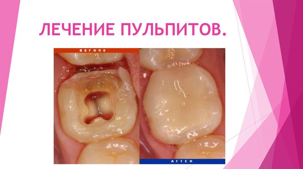 Пульпит острый и хронический. причины, симптомы, диагностика, осложнения и лечение пульпита. виды пульпита: фибринозный, гангренозный, гнойный, гипертрофический.