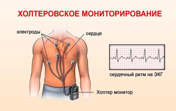 Что такое холтер сердца, как делают мониторинг, расшифровка, фото, видео, цена — сердце