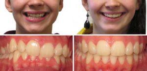 Ортодонтический трейнер для зубов – эффективный способ исправление различных зубочелюстных аномалий