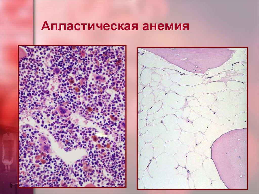 Апластическая анемия у взрослых и детей: причины, симптомы, лечение заболевания