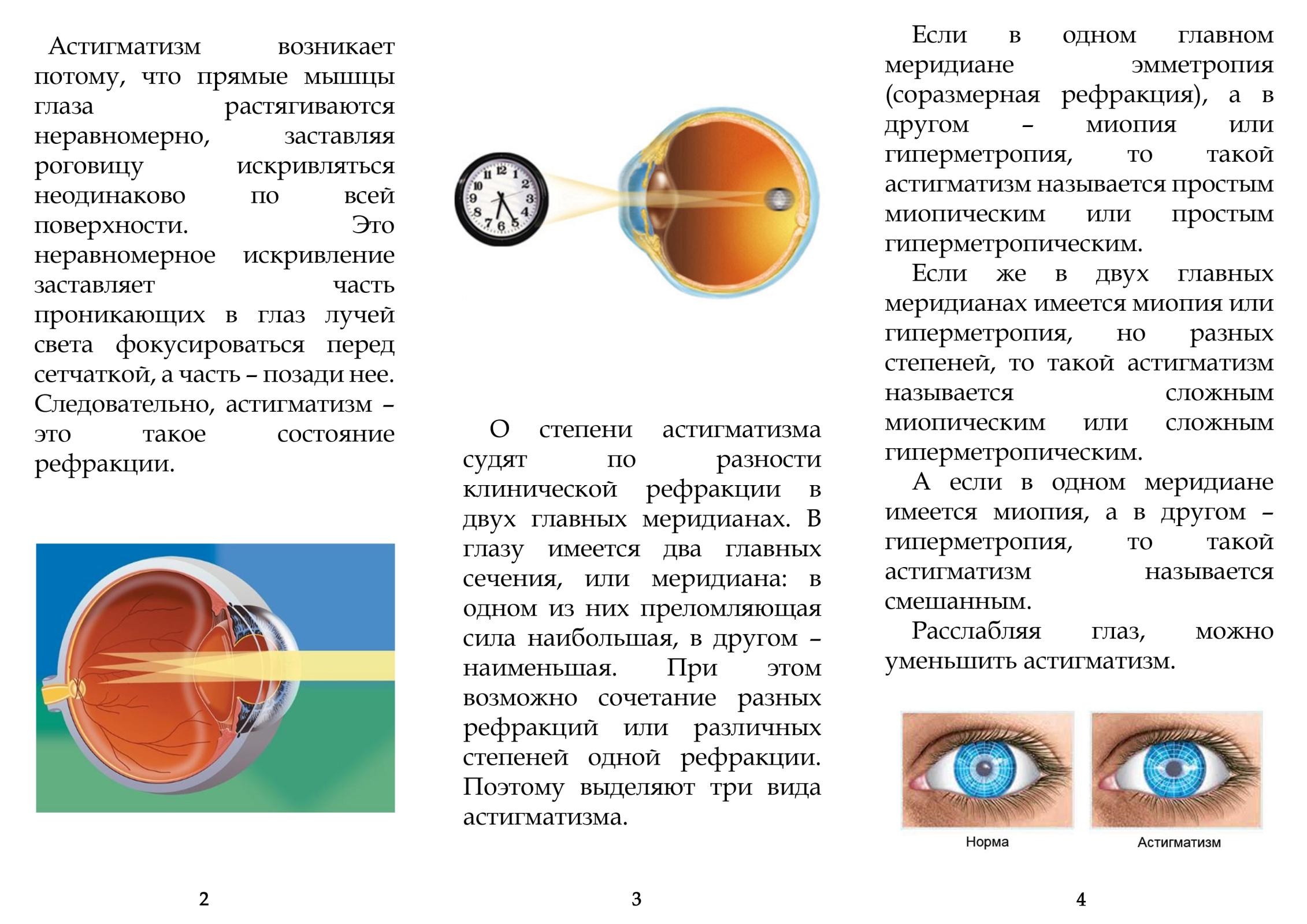 Смешанный астигматизм: что это такое, причины, симптомы, юывает ли хорошее зрение при патологии, как лечить заболевание правого глаза