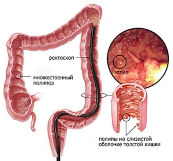 Причины, симптомы и лечение полипов в матке у женщин