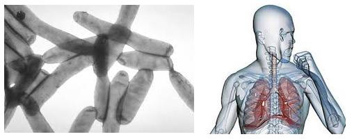 Болезнь легионеров - симптомы, лечение, причины, диагностика