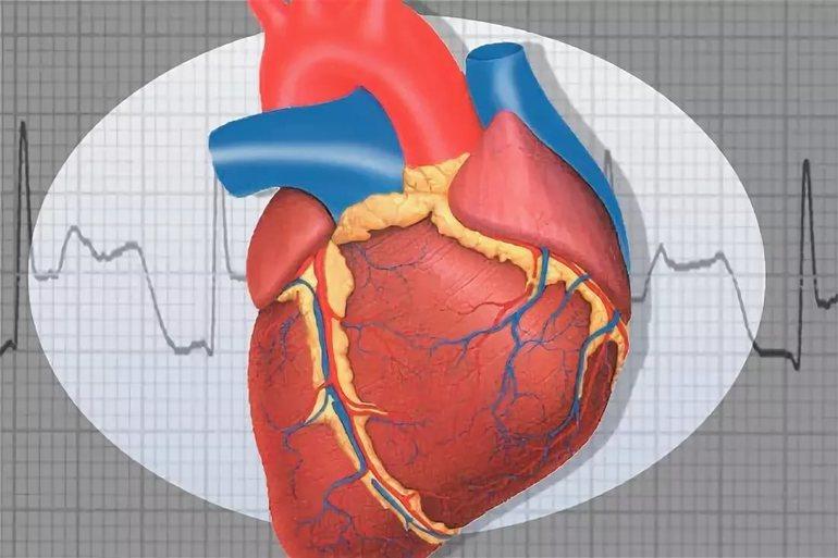 Ккф что это такое в медицине — cardio