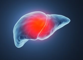 Кахексия - причины, симптомы, стадии болезни, диагностика и методы лечения