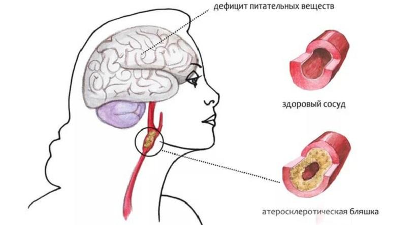Церебральный атеросклероз - как лечить заболевание, способное лишить вас счастливой старости? - всё о склерозе