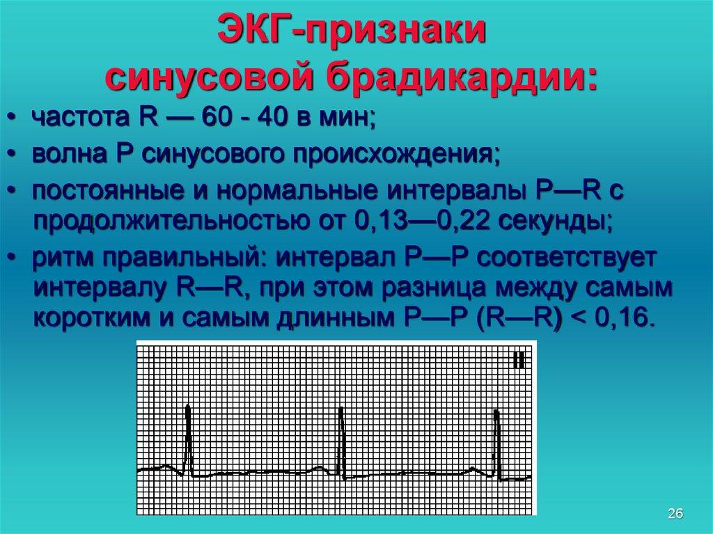 Синусовая брадикардия что это такое — сердце