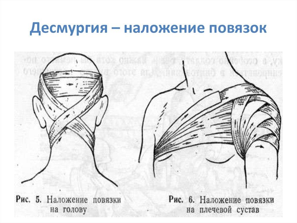 Десмургия - правила, способы, виды повязок