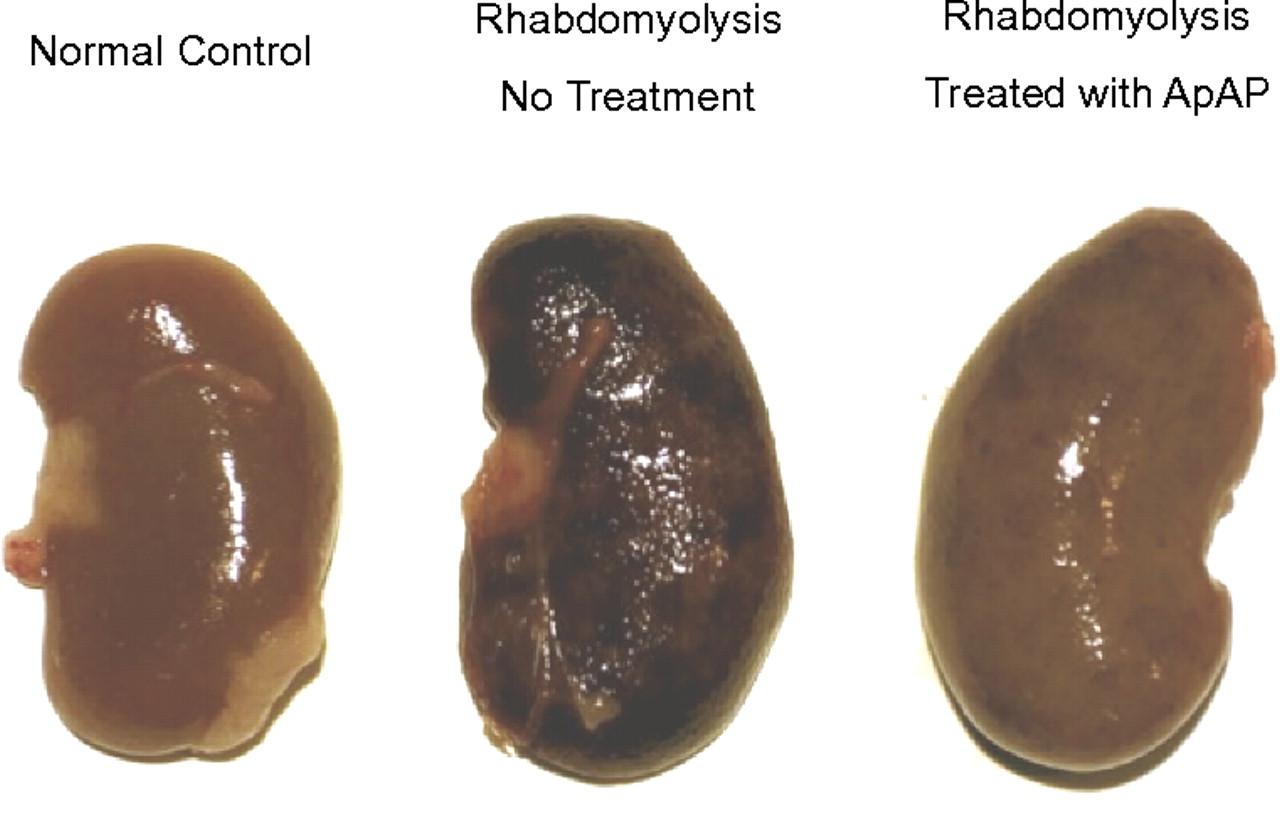 Рабдомиолиз