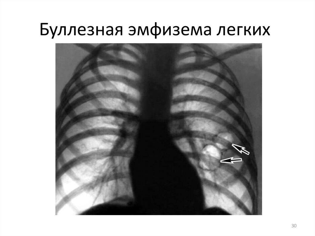 Буллезная эмфизема легких: причины возникновения и характерные симптомы
