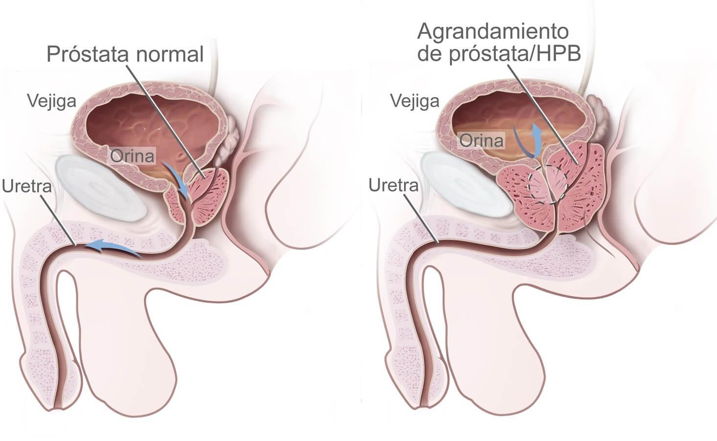 Признаки простатита у мужчин и его лечение