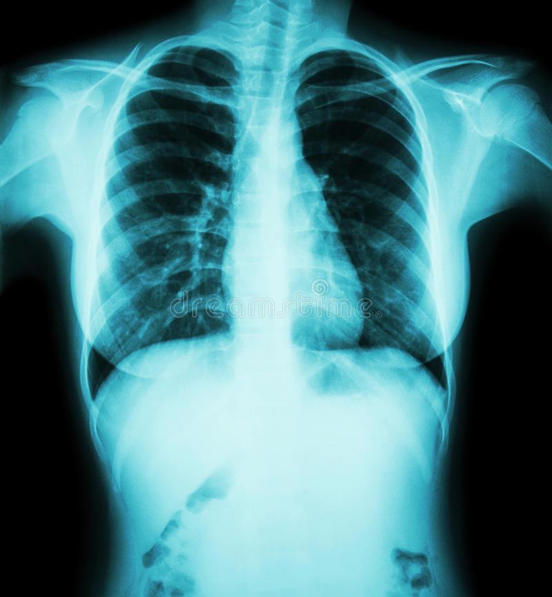 Давящая боль в грудной клетке посередине — причины, симптомы и лечение