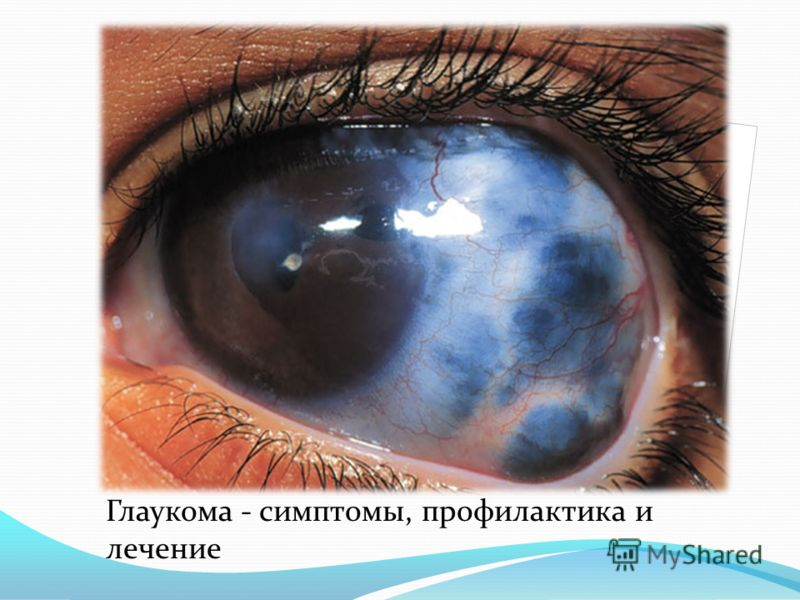 Глаукома — как после 40 лет не стать инвалидом по зрению