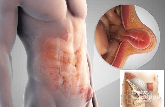 Паховая грыжа у мужчин: симптомы и способы лечения