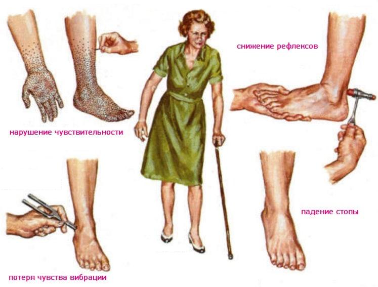 Диабетическая полинейропатия: что это такое, симптомы, лечение