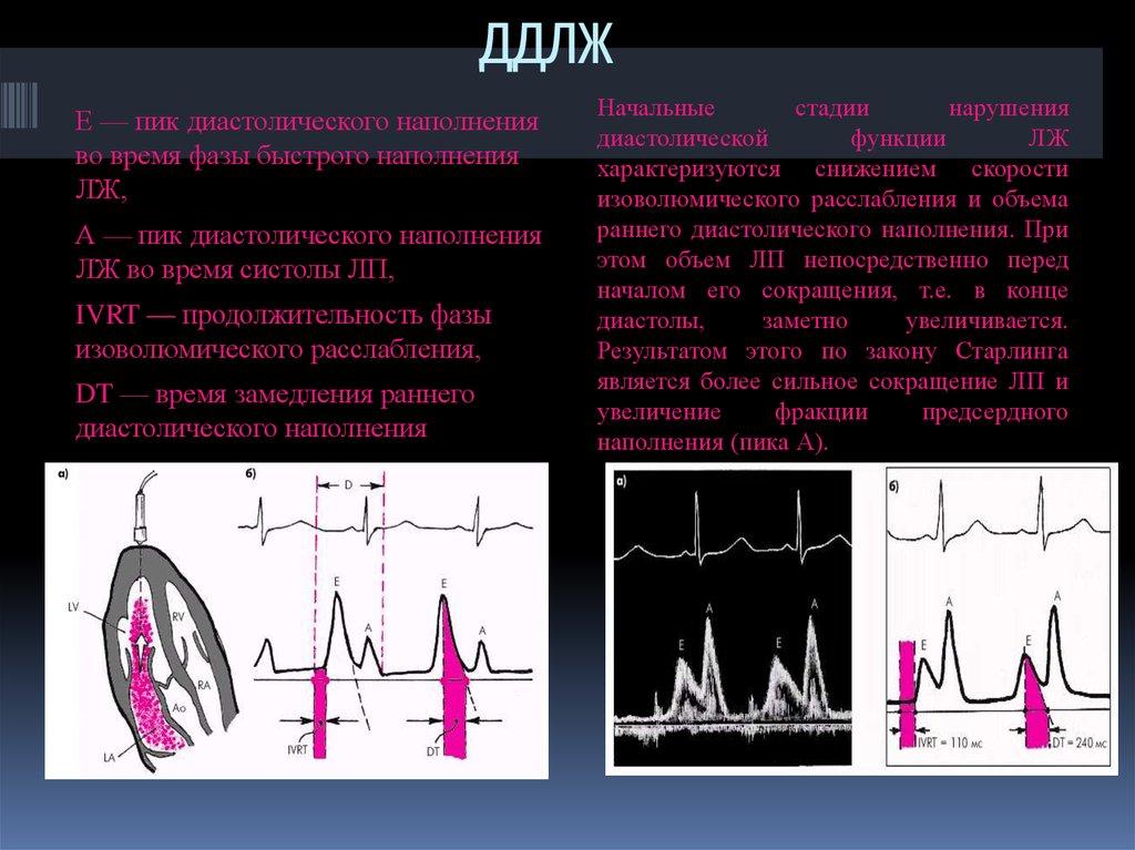 Диастолическая дисфункция левого желудочка 1 типа - что это такое и как лечить