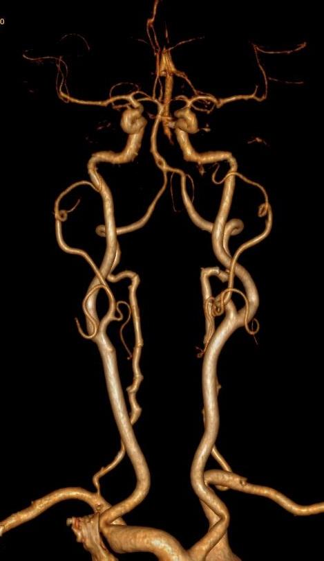 Ангиография сосудов головного мозга: что показывает мрт артерий (видео)