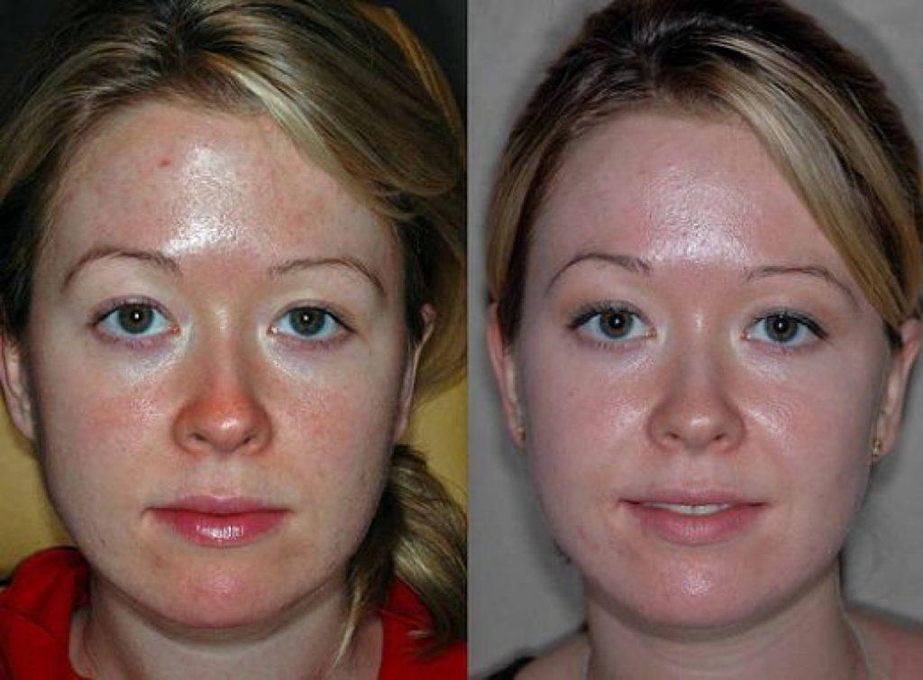 Что такое гоммаж для лица? как пользоваться косметическим продуктом, плюсы его использования, отзывы
