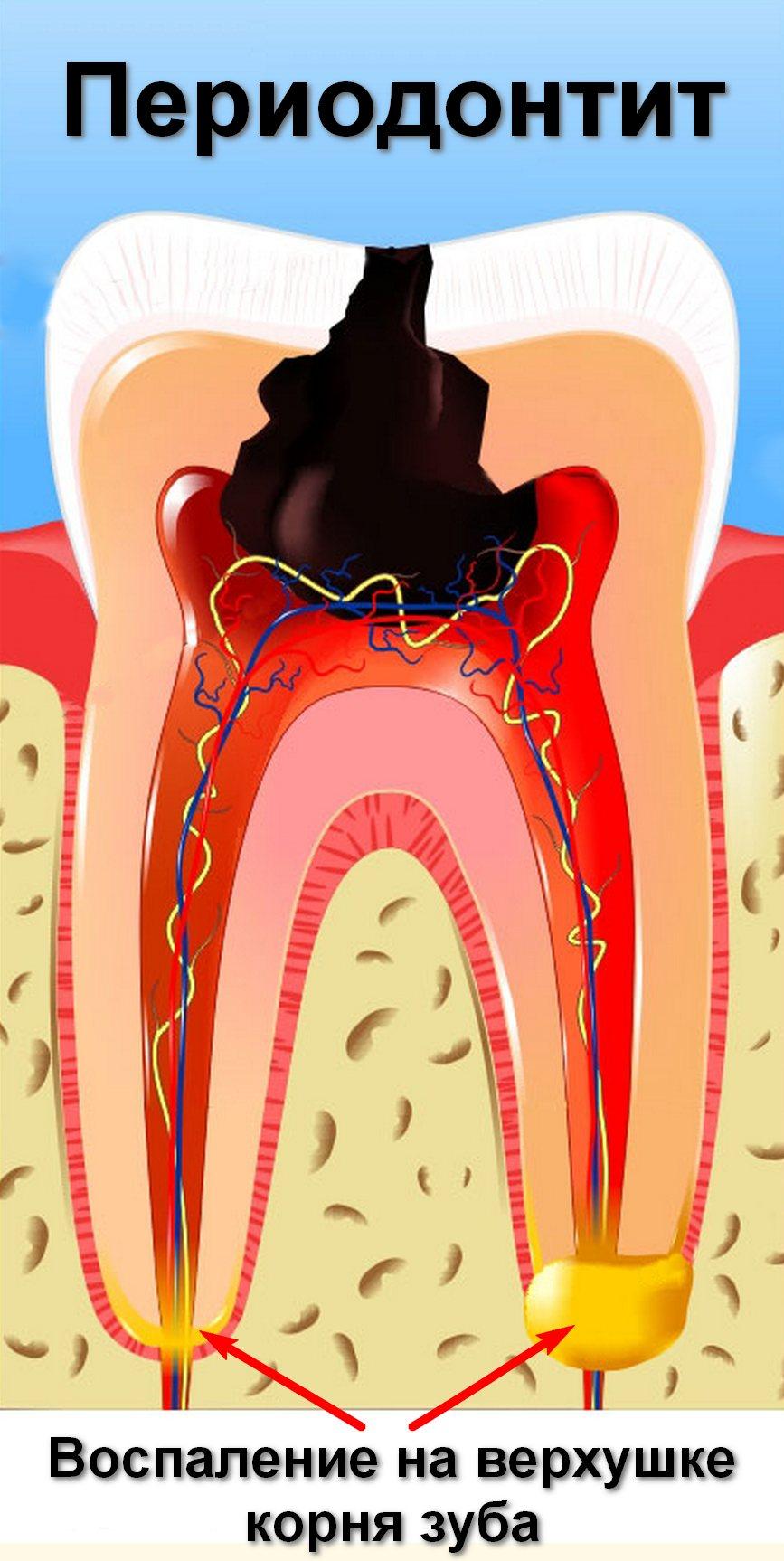 Пульпит острый и хронический. причины, симптомы, диагностика, осложнения и лечение пульпита. виды пульпита: фибринозный, гангренозный, гнойный, гипертрофический. :: polismed.com