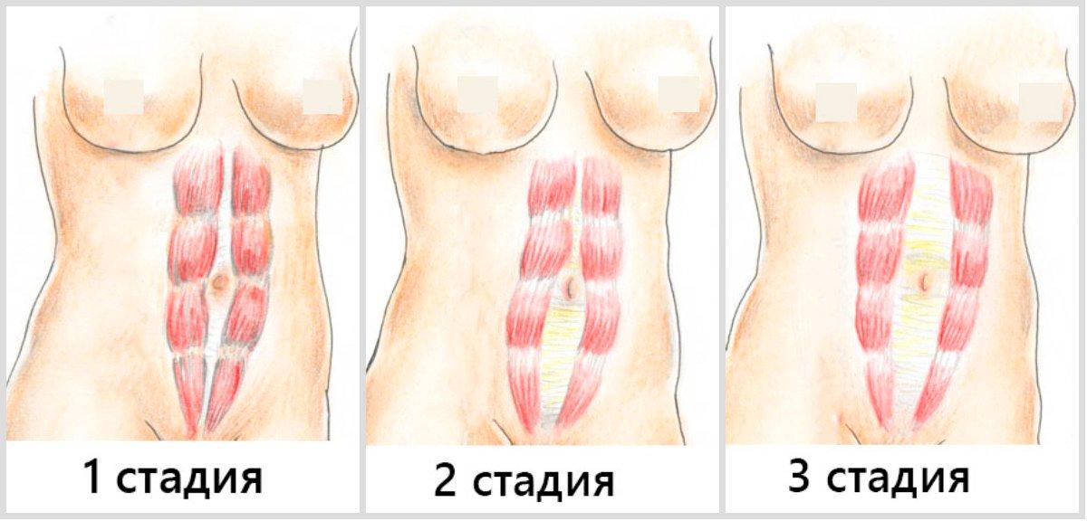 Как определить диастаз? симптомы, лечение с помощью упражнений