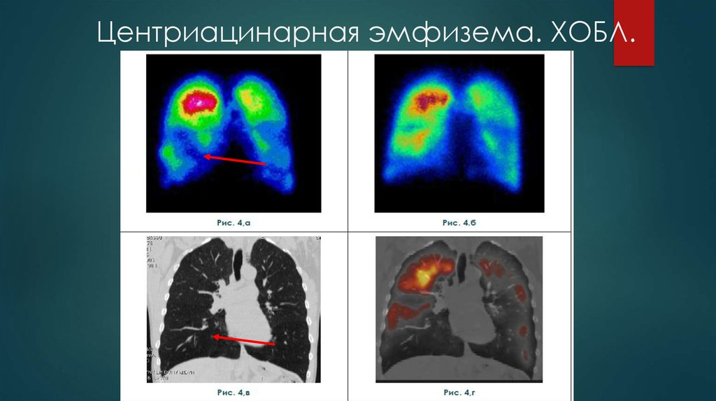 Сколько живут с эмфиземой легких?