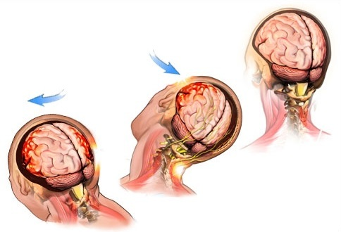 Легкое сотрясение мозга: симптомы и признаки, как оказать первую помощь