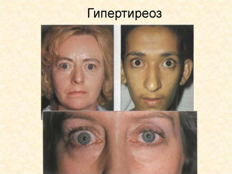 Тиреотоксикоз щитовидной железы - симптомы у женщин, лечение и питание