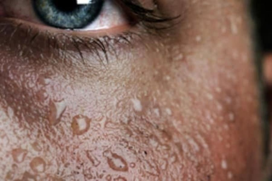 Повышенное потоотделение: при каких заболеваниях человек сильно потеет