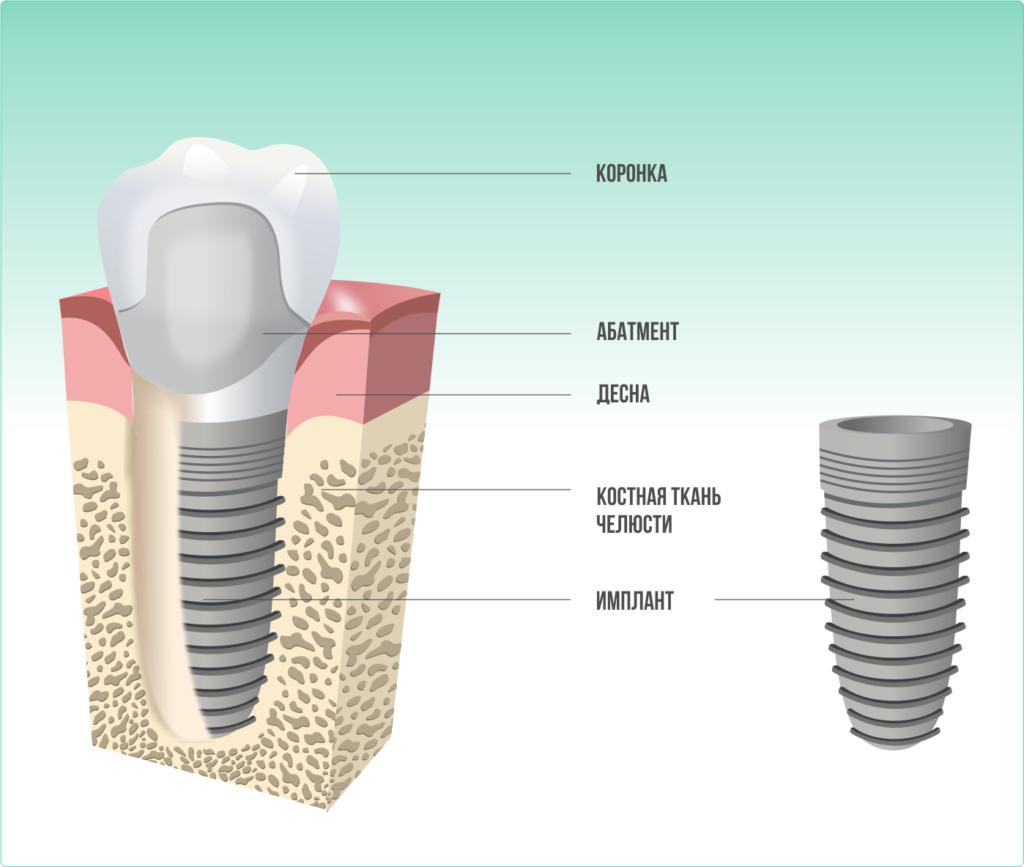 Виды имплантов зубов и их производители — какие бывают зубные имплантанты?