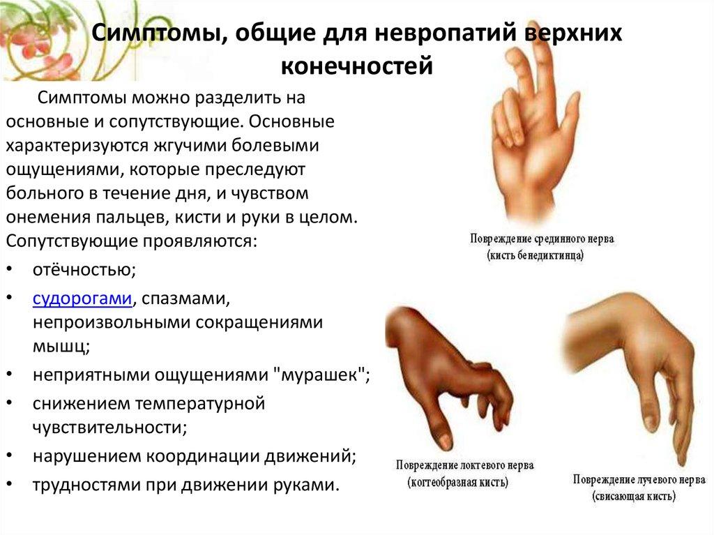 Полинейропатия конечностей - что это такое, лечение и симптомы | здрав-лаб