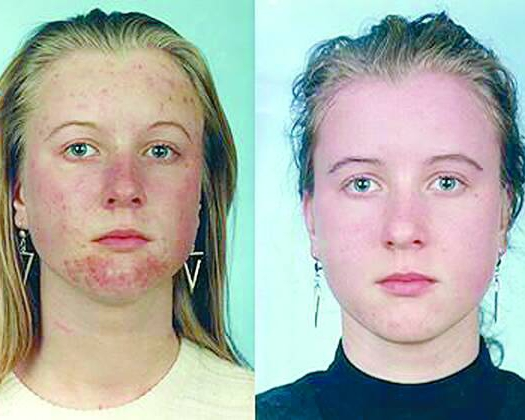 Подкожный клещ (demodex) на лице у человека – 10 фото, описание, откуда взялся, 4 стадии развития демодекоза, как лечить и как избавиться от клеща раз и навсегда. факторы риска повторного заражения