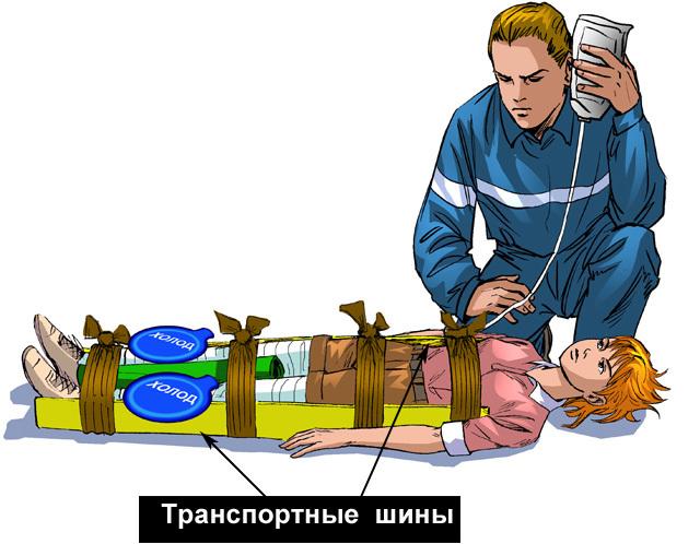 Синдром длительного сдавления — википедия