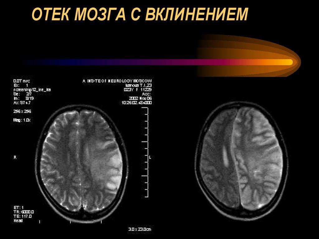 Чем опасен отёк головного мозга и какой прогноз на жизнь?