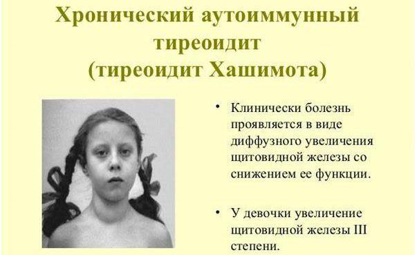 Аутоиммунный тиреоидит щитовидной железы: что это такое