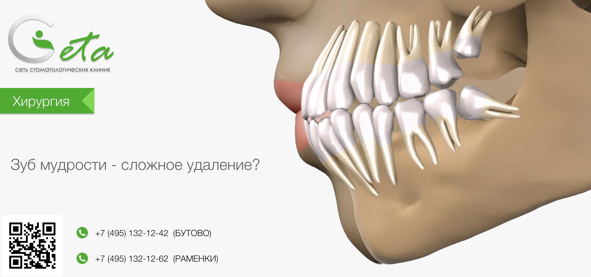 Ретинированный зуб: причины, симптомы и методы диагностики   za-rozhdenie.ru