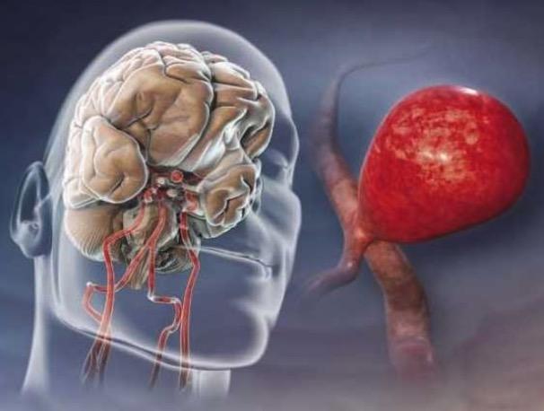Аневризма сосудов головного мозга: симптомы, лечение