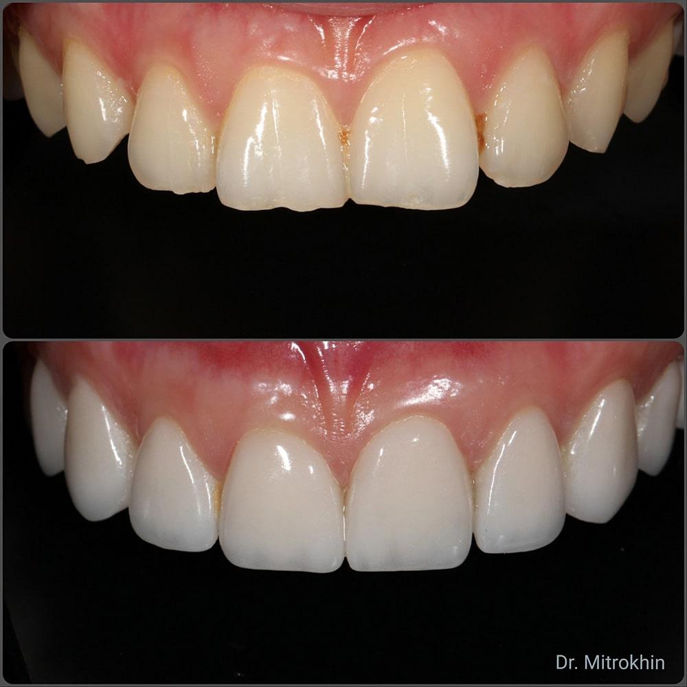5 разных способов микропротезирования зубов